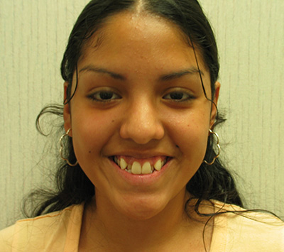 Dr. Sirin's patient, Claudia, before Invisalign.