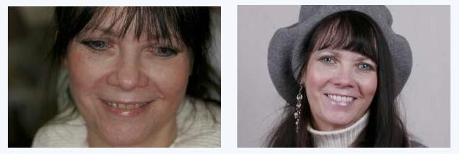 Before and after picture of a woman and her teeth with and without veneers.