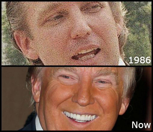 comparison photos of donald trump's teeth in 1986 and now