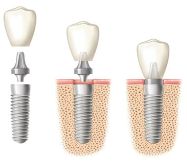 Diagram of three stages of a dental implant. Left - Implant, connector, and crown are vertical, but separate. Middle - The implant screw is in the bone and the connector and crown are hovering above it. Right - The screw is in the bone and the connector and crown are attached.