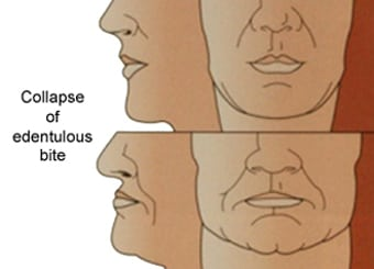 Diagram of facial collapse. The upper level shows from nose-to-chin views of a normal front face and profile. The lower level photo shows front-face and profile facial collapse.