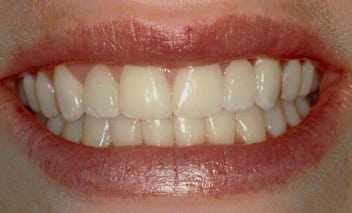 After porcelain crowns photo of a woman's close-up smile with missing upper left and right lateral incisors replaced with crowns.