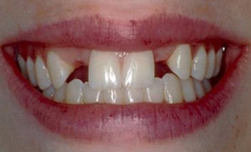 Before porcelain crowns photo of a woman's close-up smile with upper left and right lateral incisors missing.