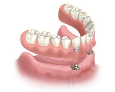 Diagram of snap-on dentures. The bottom prosthesis is hovering above the jawbone. It has two snaps in the front of the denture base. The front of the jawbone has two snaps in it to secure the dentures.