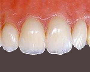 Photo of front four upper teeth, for information on zirconia crowns from Elgin dentist Dr. Sirin.