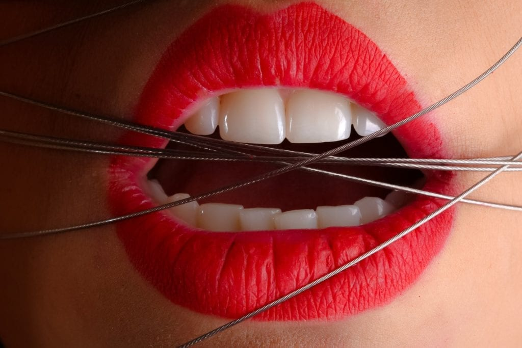 metal wires in mouth for dental implant blog