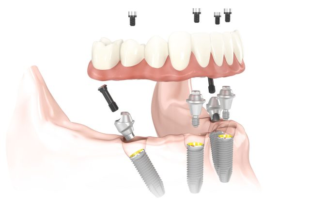 mouth model with all-on-4 dental implants