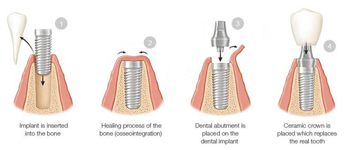 Diagram of four phases of dental implant phases, including root form in bone, healing, abutment, and crown
